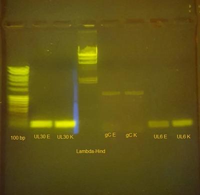 Gel electrophoresis of PCR product with Kilobaser DNA primer.